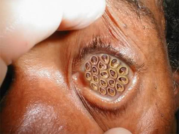 Lotus Eye Trypophobia Know Your Meme