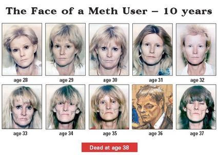 The Face of a Meth User Over 10 Years | Tom Brady's
