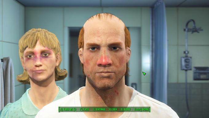 A FACE050 F) FACE E EXTRAS X SEX B) BODY Enten DONE Fallout 4 Fallout: New Vegas face chin head forehead cheek