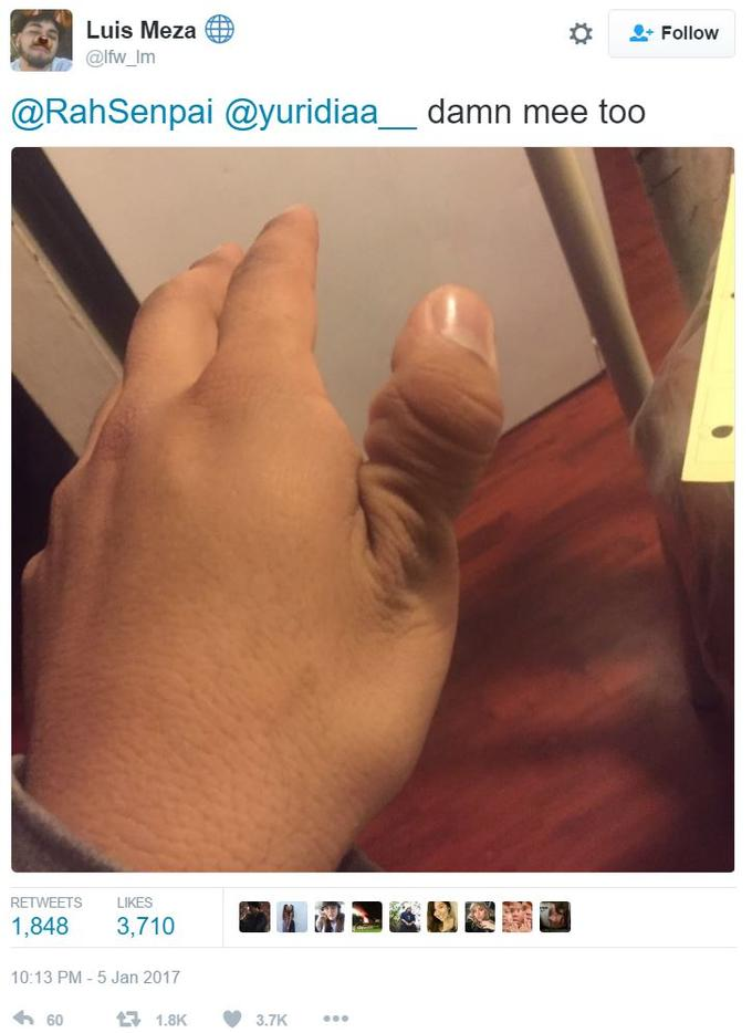 how to break your thumb ligament know your meme