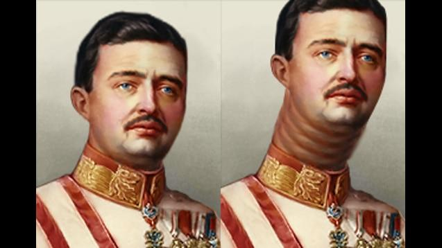 Charles I of Austria Hirohito Chin Cheek Forehead Neck