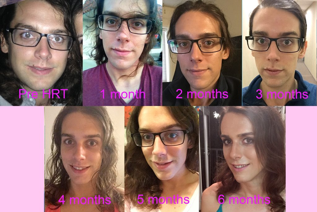 Transsexual transition photos