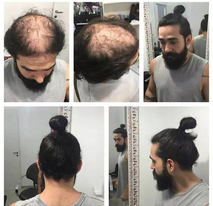 Balding Man Man Bun Know Your Meme